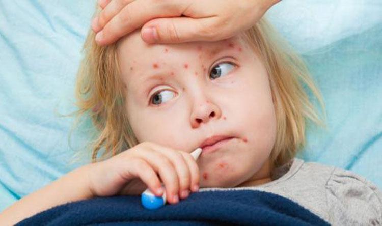 """نتيجة بحث الصور عن """"الصحة العالمية"""": حالات الإصابة بالحصبة في أوروبا الأعلى خلال عقد"""