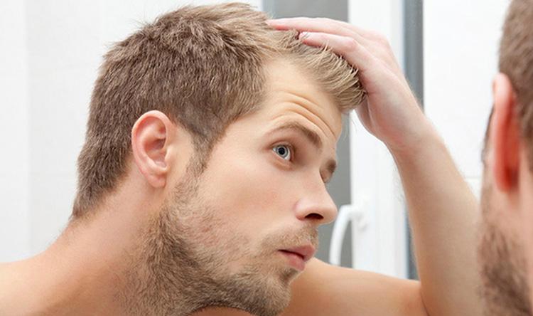 قشرة الرأس أخطر مرض!