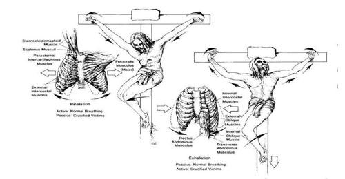 الصلب من الناحية الطبية… التفاصيل التشريحية والوظيفية لموت المسيح