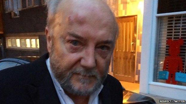 جورج غالاوي في المستشفى بعد تعرضه للضرب