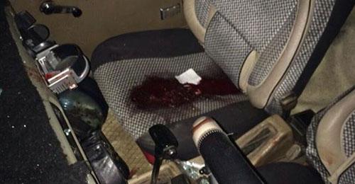بالصور: وفاة بدر عيد شقيق النائب السابق علي عيد متأثرا بجراحه بعد اطلاق نار في الكويخات