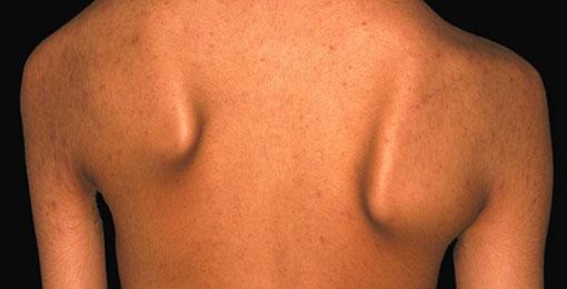 إضطراب عضلات الوجه والظهر والكتفين: أعراض وأسباب