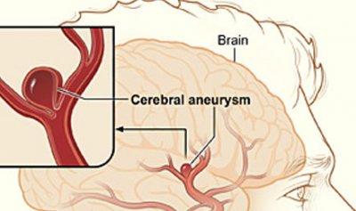 ما هي الأنورسما الدماغية أو Cerebral Aneurysm وهل يمكن معالجتها؟