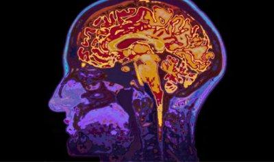 التعلّم يزيد خلايا الدماغ !!
