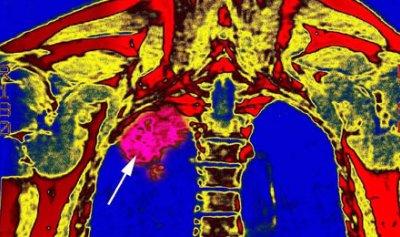 سرطان الرئة إلى حلّ جذري