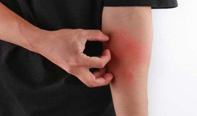 ما علاج الحكة في الجسم؟
