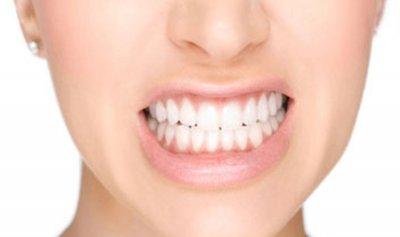 ابتكار طلاء بروتيني لوقاية الأسنان من التسوس
