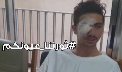 """الثوار يطلقون حملة """"ثورتنا عيونكم"""""""