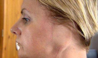 بالصورة: امرأة بلا أذن إثر عادة خطيرة