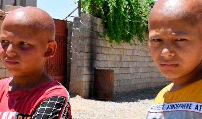 أطفال يولدون بلا شعر في قرية عراقية