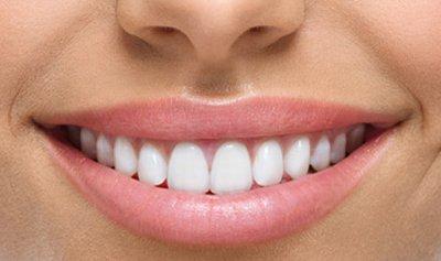 7 طرق لمحاربة تسوس الأسنان