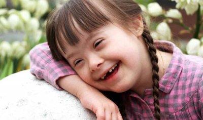 """إنجاز طبي يمنح """"بارقة أمل"""" للمصابين بمتلازمة """"داون"""""""