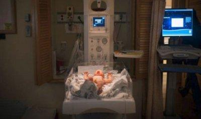 طفل يولد من دون جلد