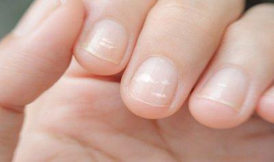 البقع البيضاء على الأظافر لا تعني فقط نقص الكالسيوم!