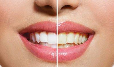 سبل للمحافظة على أسنان ناصعة البياض