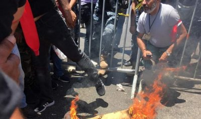 بالصورة: عسكري مقعد يُحرق اطرافه الاصطناعية