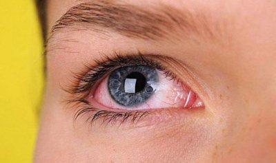 أعراض تنذر بالتهاب العين